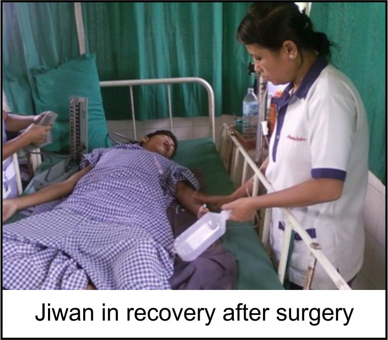 Jiwan in recoveing after surgery 2