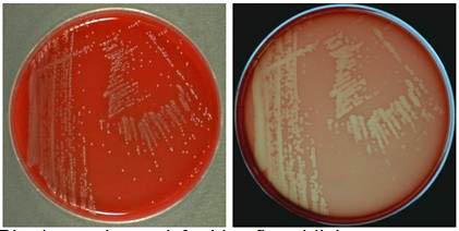 Listeria plates