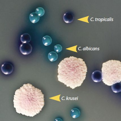 HardyCHROM Candida