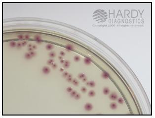 ESBL e. coli