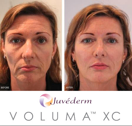 Cloud 9 Medi Spa Mother's Day Savings! Juvederm