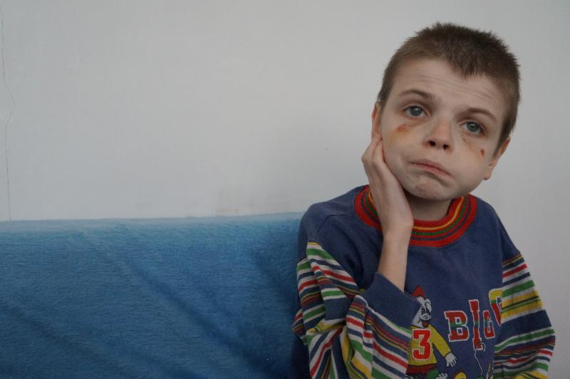 Child with bruised eyes sitting on a couch looking into the camera