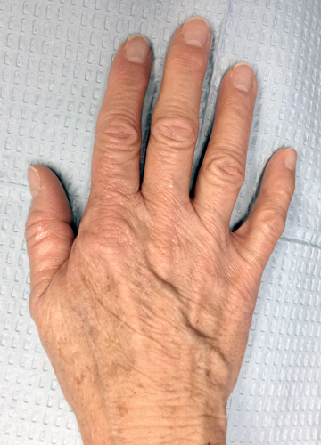 right hand before treatment