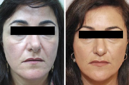 $500 Off The Stem Cell Facelift