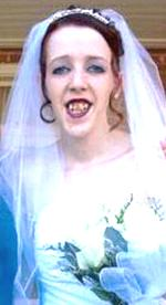 ugly teeth bride