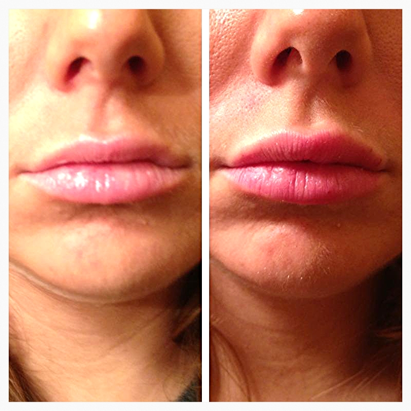 beauty lips photo