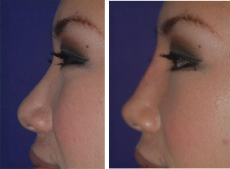 Smooth contours of the nose