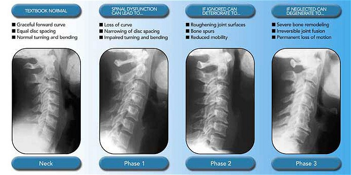 spinal degeneration Inwood Chiropractic Center