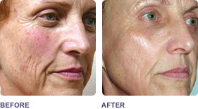 Skin Tightening Thermismooth For Eyes And Skin