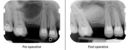 sinus cavity x-rays