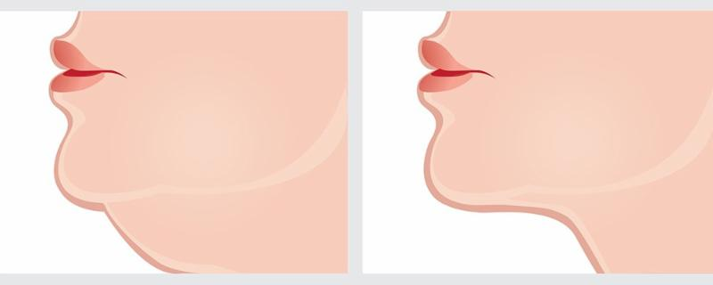 Graphic of double chin reduction, as from Kybella