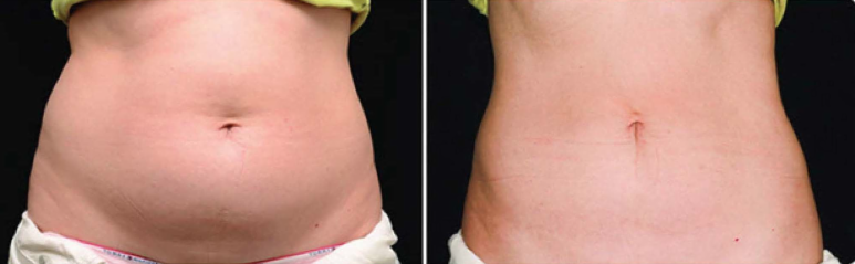 CoolSculpting Before & After 01