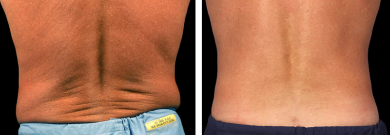 CoolSculpting Before & After 03