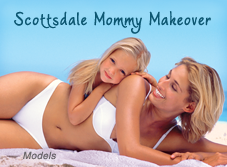 Scottsdale Mommy Makeover