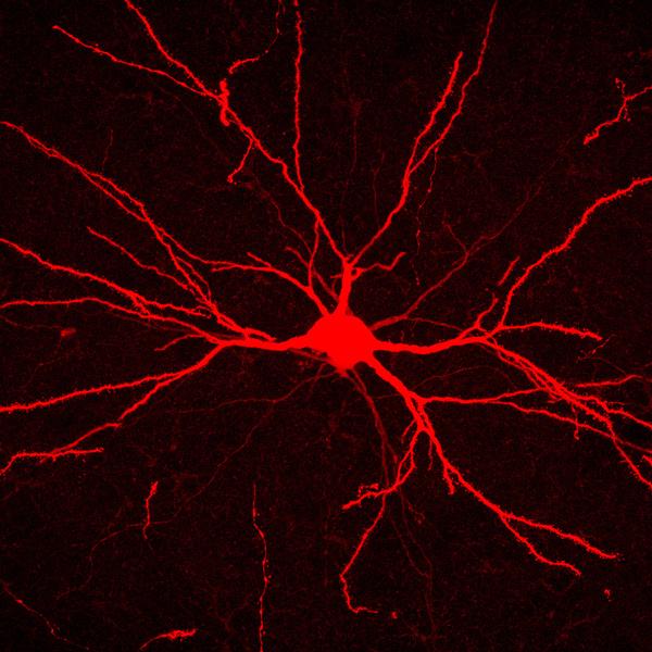 Fantastic Plastic Brain Image