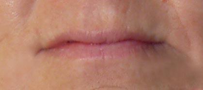 Kathy Before_lips